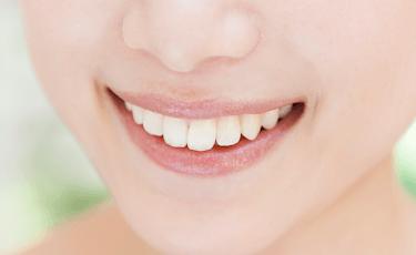 歯並びや歯の色のお悩み